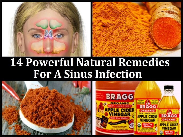 Templeton Times: 14 Powerful Natural Remedies For A Sinus