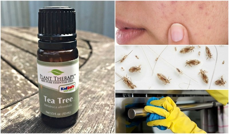 10 Ways Having A Bottle Of Tea Tree Oil Will Change Your Life