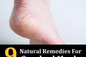 9 Natural Remedies For Cracked Heels