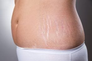11 Natural Ways To Fade Stretch Marks That Really Work