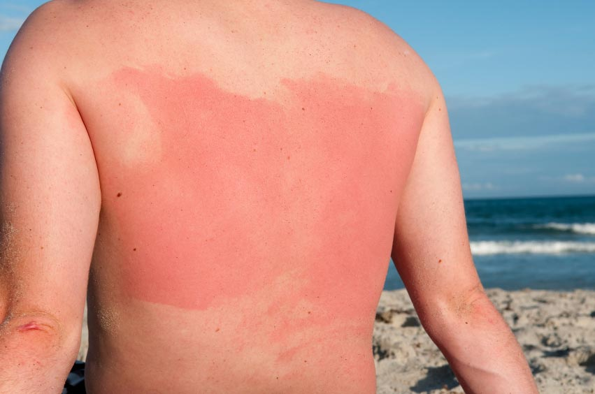 9 Most Effective Home Remedies To Heal A Sunburn Fast