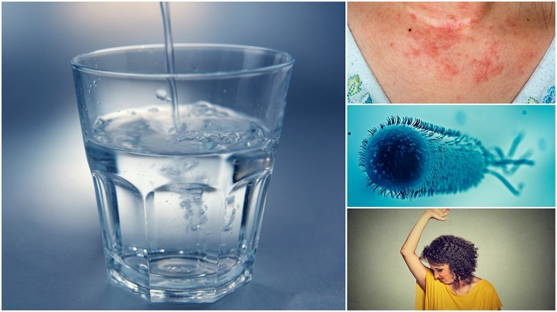 20 Really Bad Signs You Aren't Drinking Enough Water