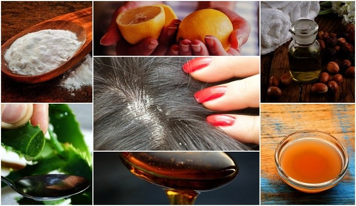 How To Get Rid Of Dandruff For Good  9 Best Home Remedies That Work