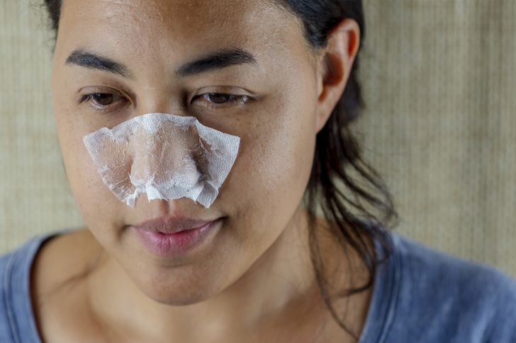 5 Minute DIY Pore Strips To Remove Blackheads